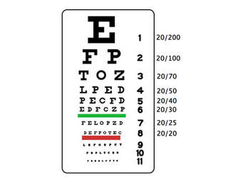 Snellen chart misses the mark in helping some children and adults.